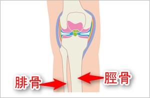 右膝の正面からの断面図